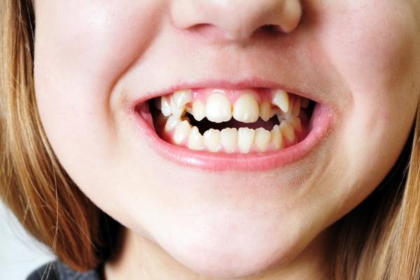 close up - bad  crooked teeth of girl