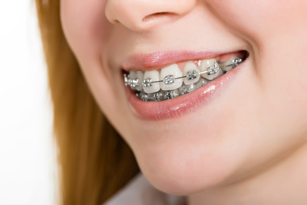 woman with brackets on teeth close up